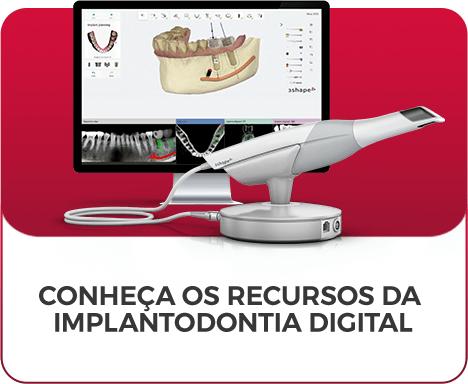 Implantodontia Digital